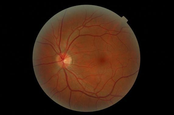 Identifican-en-dos-familias-espanolas-un-nuevo-gen-asociado-a-retinosis-pigmentaria_image_380