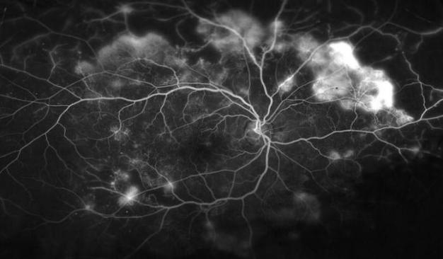 blood-vessels-in-the-retina