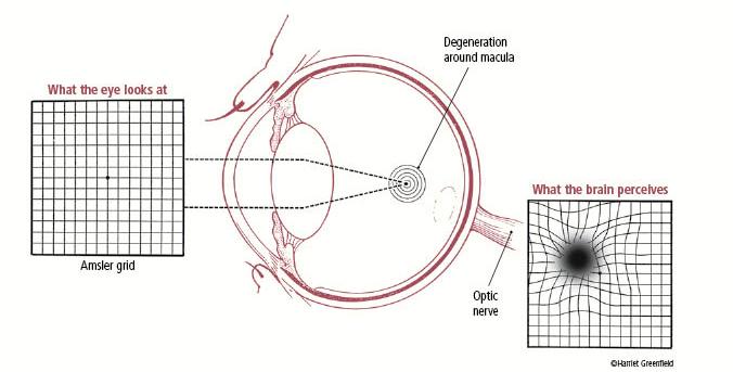 amsler-grid-macular-degeneration